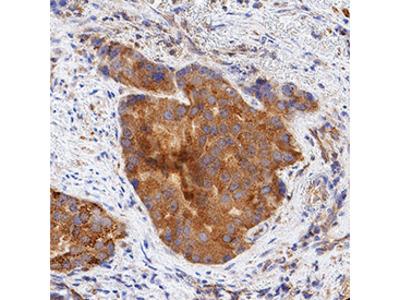 LPAR1 /LPA1 /EDG-2 Antibody