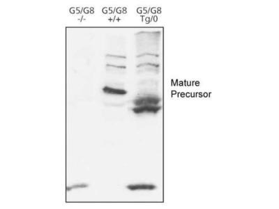 Anti-ABCG8 antibody