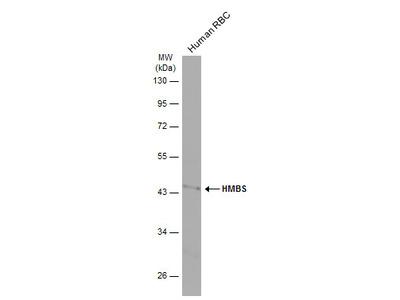 Anti-HMBS antibody [N2C3]