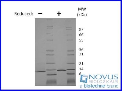 beta-NGF Recombinant Protein