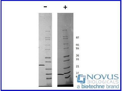 Artemin Recombinant Protein