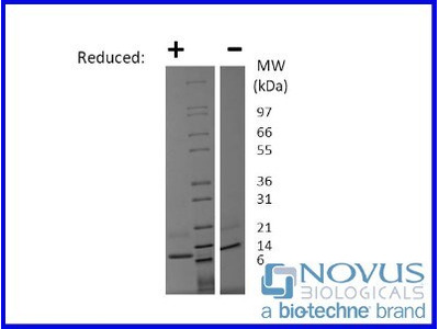 CCL19 / MIP-3 beta Recombinant Protein