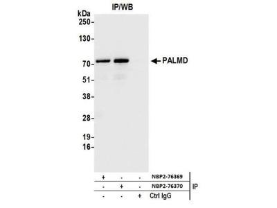 PALMD Antibody
