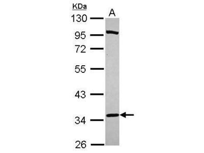 Anti-PURA antibody [N1C2]