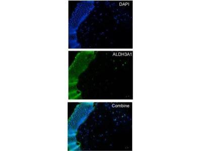 Anti-ALDH3A1 antibody [N1C2]