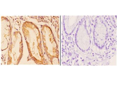 Anti-COP Zeta 1 (I48) COPZ1 Antibody