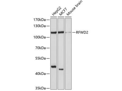 Anti-RFWD2 COP1 Antibody