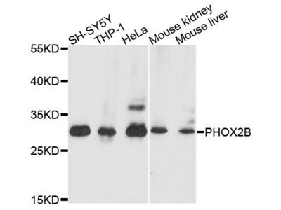 Anti-PHOX2B Antibody