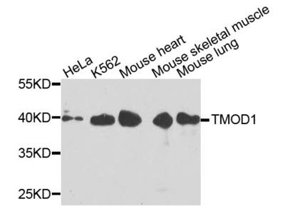 Anti-Tropomodulin-1 TMOD1 Antibody