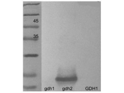Anti- GDH2 ; Glutamate dehydrogenase 2