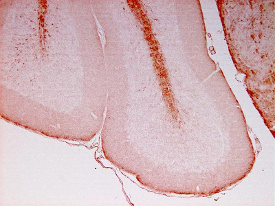 Anti-NF-L antibody