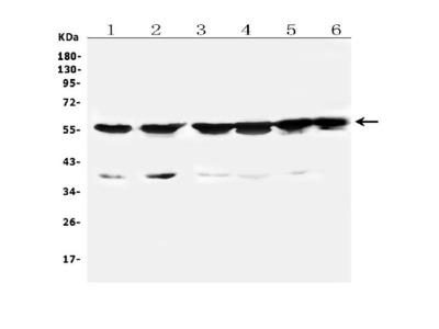 Anti-Cytochrome P450 2B6/CYP2B6 Picoband Antibody