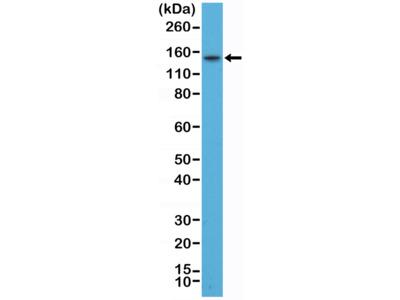 Anti-TPO (Thyroid Peroxidase) Rabbit Monoclonal Antibody, Clone#RM368