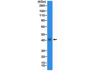 Anti-TTF1 (Thyroid transcription factor 1) NKX2-1 Rabbit Monoclonal Antibody, Clone#RM373