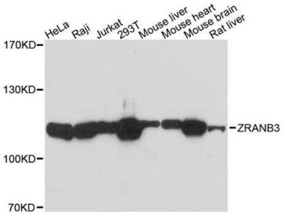 anti-ZRANB3 Antibody