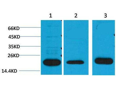anti-periaxin Antibody