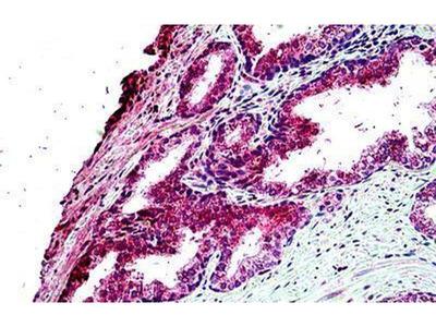 anti-TBC1D10A Antibody