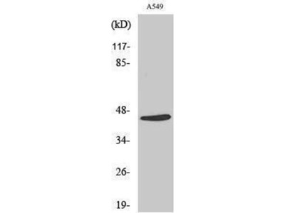anti-MASP-1 HC Antibody