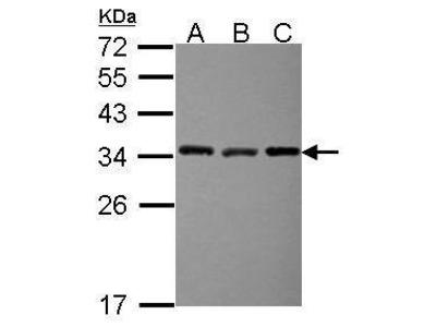 Anti-EXOSC3 antibody