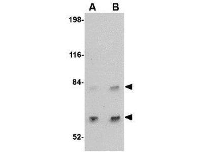 Anti-SATB2 antibody