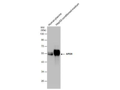Anti-Apolipoprotein H antibody [N1C2]