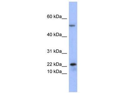 anti-PLA2G5 Antibody
