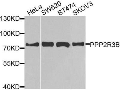 anti-PPP2R3B Antibody