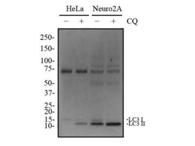 Anti-LC3A antibody