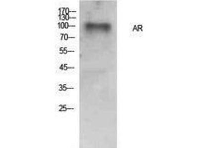 anti-AR Antibody