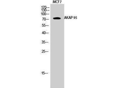 anti-AKAP8 Antibody