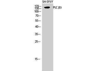 anti-PLCB3 Antibody