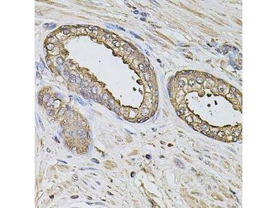 anti-S100A12 Antibody