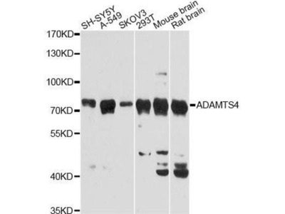 anti-ADAMTS4 Antibody