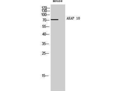 anti-AKAP10 Antibody