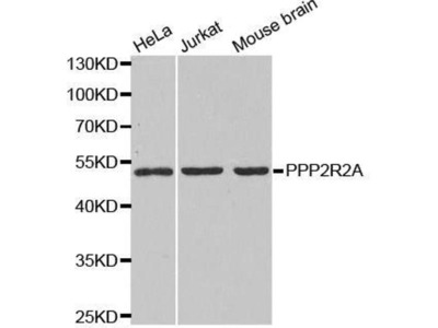anti-PPP2R2A Antibody