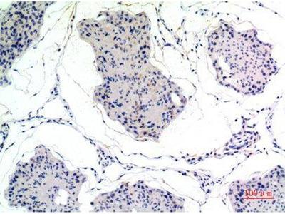 anti-Thrombospondin 2 Antibody