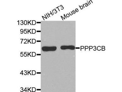 anti-PPP3CB Antibody
