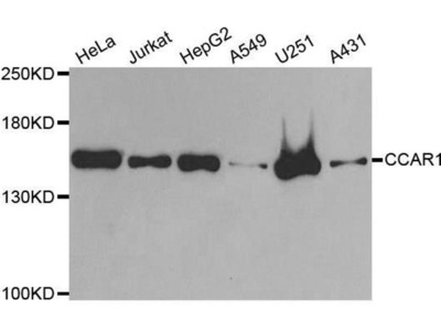 anti-CCAR1 Antibody