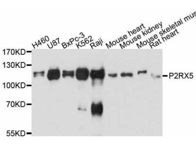 anti-P2RX5 Antibody