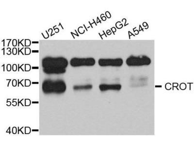 anti-CROT Antibody