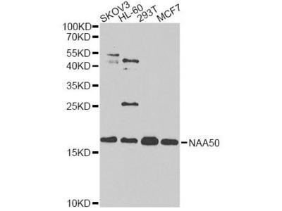 anti-NAA50 Antibody