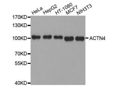 anti-alpha Actinin 4 Antibody