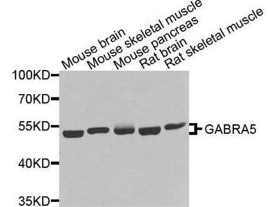 anti-GABRA5 Antibody