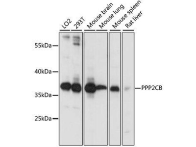 anti-PPP2CB Antibody