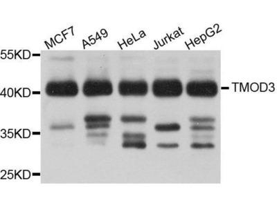 anti-TMOD3 Antibody