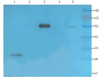 anti-VEGF Antibody