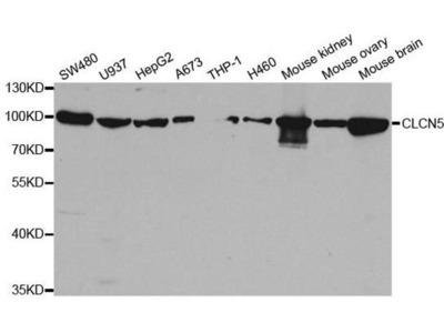 anti-Chloride Channel 5 Antibody