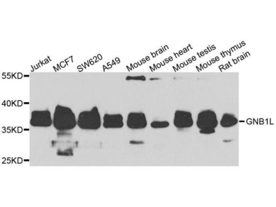 anti-GNB1L Antibody
