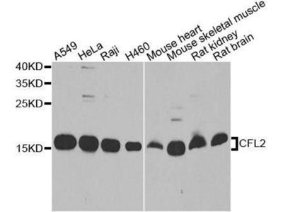 anti-Cofilin 2 Antibody