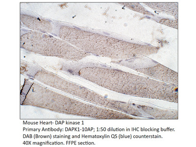 DAP Kinase 1 Antibody